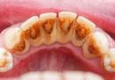 Cara Bersihkan Karang Gigi Pakai Bahan Sederhana